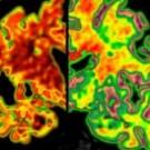 Ser bilingüe protege al cerebro de la demencia